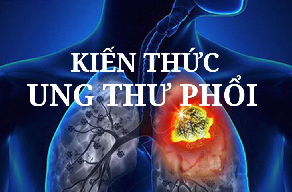 kiến thức về ung thư phổi